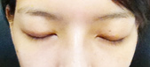 部落客 Ninnie體驗訂書針雙眼皮療程:1945417858.jpg