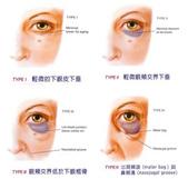 眼袋手術:1732262287.jpg