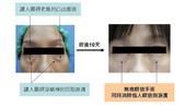 眼袋手術:1732262289.jpg