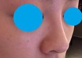 小資女也能變身混血明星:nose2.jpg