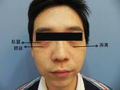 眼袋手術:1732262285.jpg