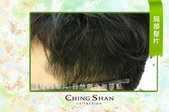 遺傳性掉髮 髮片立即增髮:青山假髮 髮片 (3).jpg
