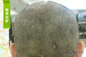 台北最實在的手工假髮:青山手工醫療假髮使用前.jpg