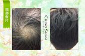 遺傳性掉髮 髮片立即增髮:青山假髮 髮片.jpg
