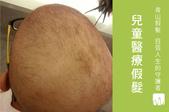 兒童醫療專用假髮:兒童醫療假髮.jpg