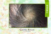 遺傳性掉髮 髮片立即增髮:掉髮.jpg