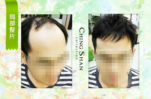遺傳性掉髮 髮片立即增髮:青山假髮 髮片 (1).jpg