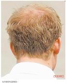 網誌用照片2:哈利頭頂毛髮稀疏.jpg