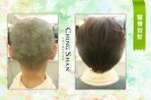 台北最實在的手工假髮:青山手工醫療假髮-2.jpg