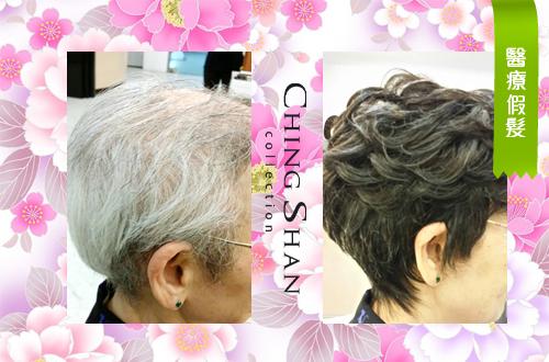 母親節禮物推薦 醫療假髮遮白髮更美麗:醫療假髮.jpg