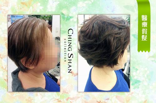 母親節最棒的禮物 青山假髮:青山醫療假髮01.jpg