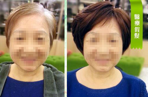 母親節最棒的禮物 青山假髮:青山醫療假髮03.jpg