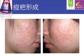 護膚保養:紅色痘疤及凹陷性痘疤.jpg