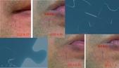 護膚保養:杏仁酸效果性3.jpg
