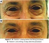 護膚保養:mmexport1503042709475.jpg
