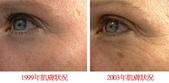 護膚保養:老化肌膚研究2.jpg