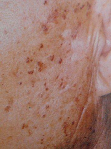 護膚保養:曬斑與老人斑2.jpg