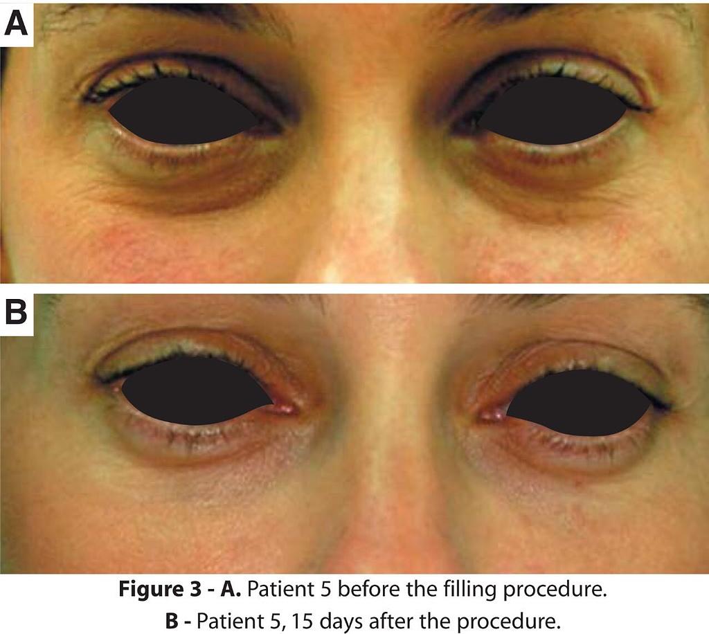 護膚保養:mmexport1503042715248.jpg