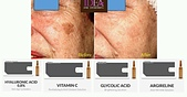 護膚保養:35728636_10215888867525585_5550103069426974720_o.jpg