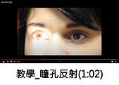 王衡:瞳孔伸縮.jpg