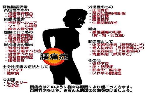 腰痛 左側 女性